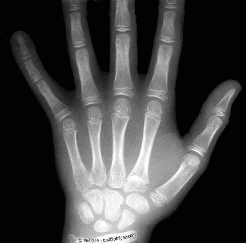 X-ray Hand © Phil Gee
